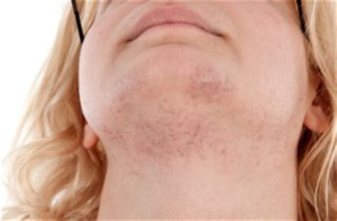chin hair in women picture 14