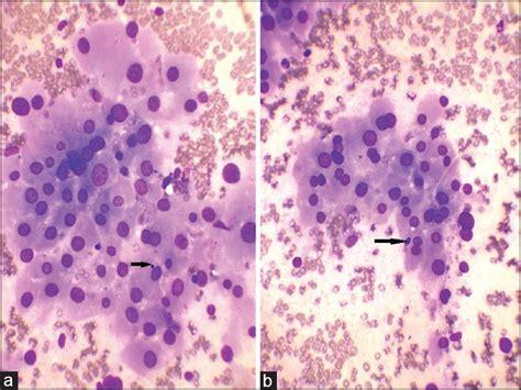 follicular cells in thyroid nodule picture 11