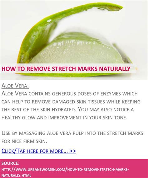 ways to remove stretch marks picture 1