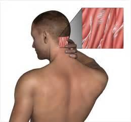 back pain head ache picture 15