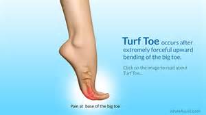 big toe joint picture 15