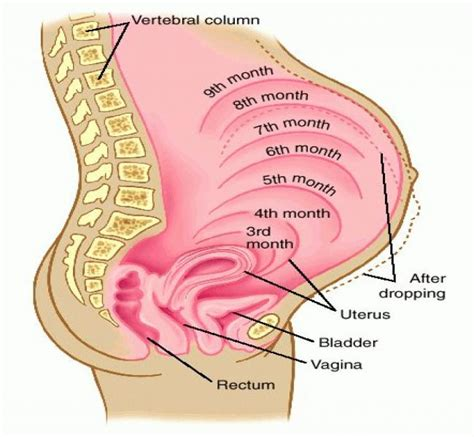 hemorrhoid relief while pregnant picture 1
