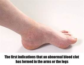 10 signs of blood clot picture 5
