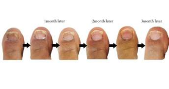 vicks cure toenail fungus picture 5