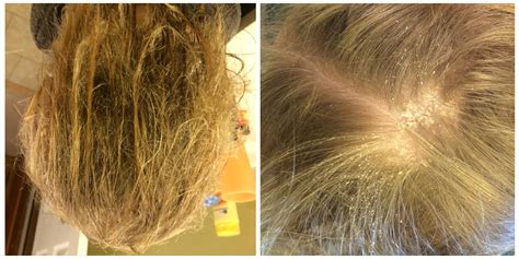 chlorine damaged hair picture 2