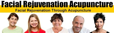 acugems rejuve treatments acupuncture face lift in washington picture 8