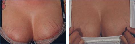 fraxel stretch mark picture 10