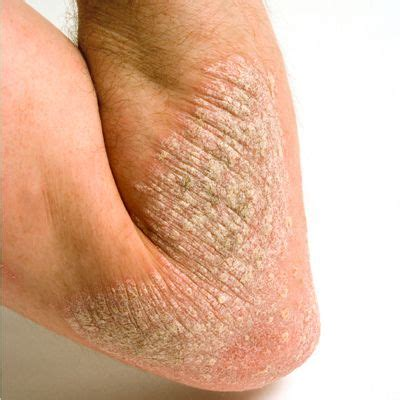 healing dry scaling feet herpes picture 1