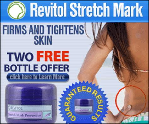 which pharmacy i can get revitol(stretch mark prevention picture 4