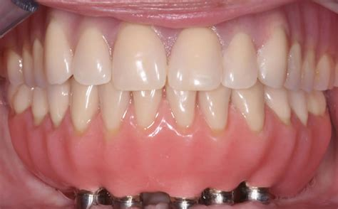 a picture of full set off teeth picture 3