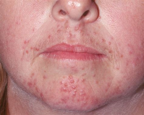 lupas ans acne picture 5