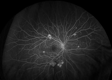 california diabetic retinopathy picture 17