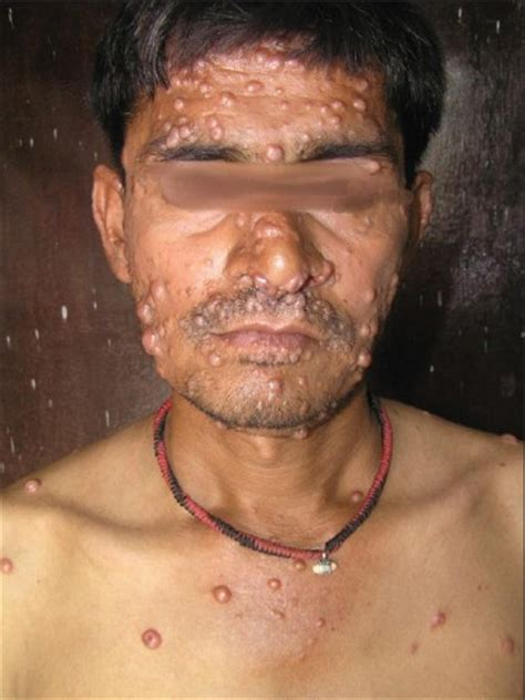 skin lesions of hiv positive patients picture 5