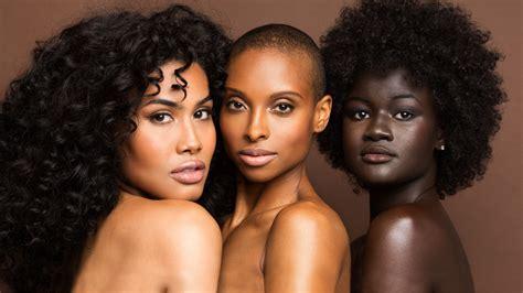 light skin black problems 2017 picture 2