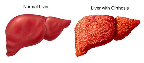 anyone who had a bad liver transplant picture 10