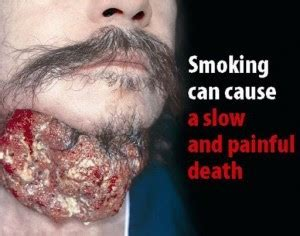 can you be allergic to tobacco smoke picture 4