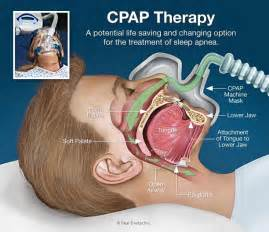 breathing machine for sleep apnea picture 15