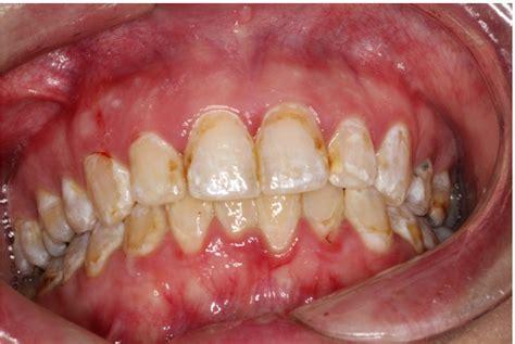 cystal meth ruin teeth picture 7