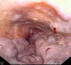 thyroid grows into esophagas picture 9