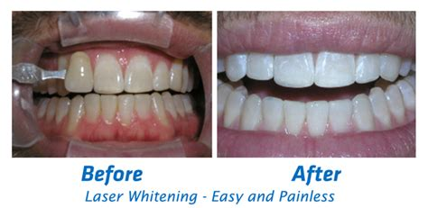 teeth whitening laser picture 7