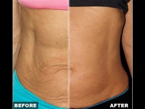 loose skin after weight loss picture 5