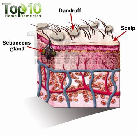 skin like dandruff picture 13