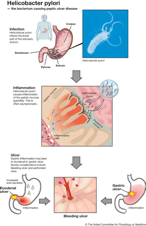 cause of bacterial infection in the stomach picture 18