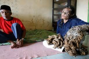 persian cat skin diseases picture 1