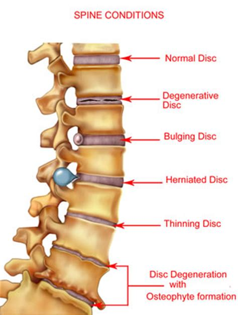 disc pain relief picture 1