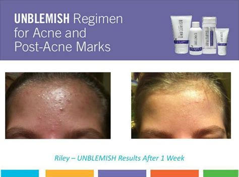 how to treat post acne marks picture 3