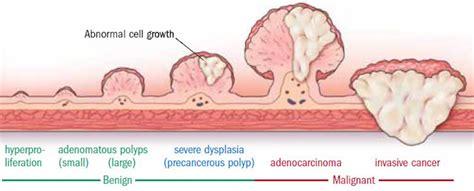 colon polyp picture 17