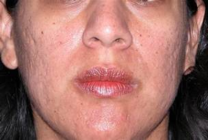 skin care for acne scars picture 10