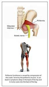muscle joint pain legs picture 18