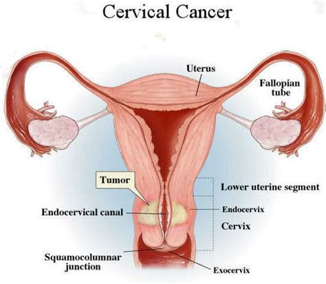 what are signs of colon cancer picture 6