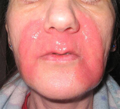 what can you do for burned lips picture 10