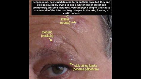 nodnuel cystic acne medical definition picture 7