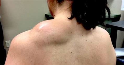 pimples picture 2