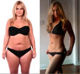 new weight loss pill that works like stomach surgery picture 3