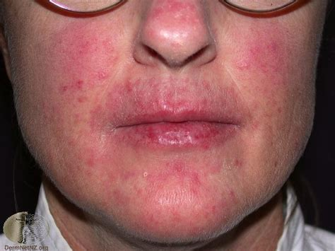 yeast infection around the mouth picture 13