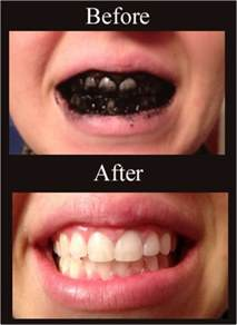 whiten teeth without perioxide or bleach picture 15