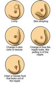 para sa may breast cancer picture 2