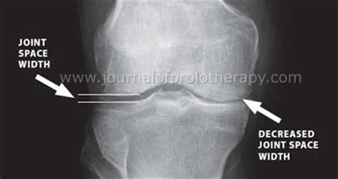 medial knee pain + joint space picture 6