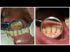 can dental hygienist remove cement from teeth with picture 9