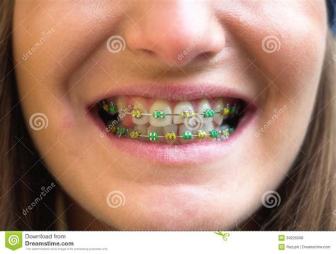 colored braces teeth picture 7