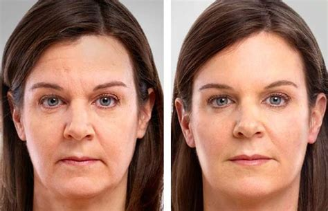 top aging neck treatments doctor oz 2014 picture 4