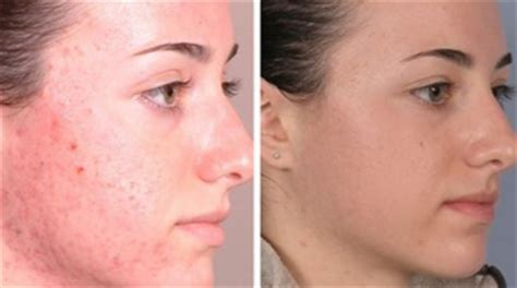 chemical pel acne treatment series picture 14