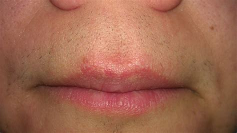 Pictures of fordyce's conditions on the upper lip picture 16
