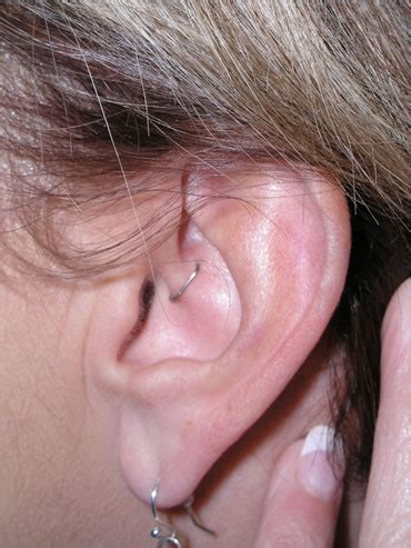 weight loss staples ear picture 1