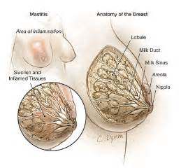 breast yeast infection picture 2