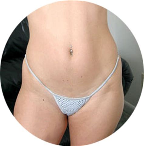 vigenal tight tips picture 3